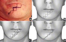 Wave technique for treatment of lower lip cancer