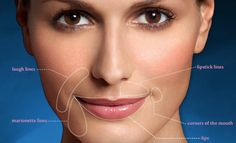 Using Restylane And Perlane To Correct Moderate To Severe Facial Wrinkles