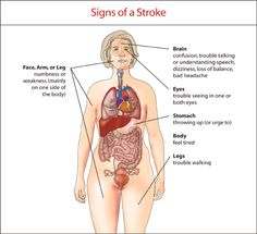 Signs of a stroke. Pinned by SOS Inc. Resources @Rebecca Porter Inc. Resources.
