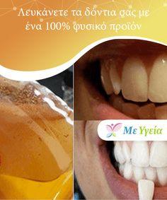 Λευκάνετε τα δόντια σας με ένα 100% φυσικό προϊόν   Θέλετε να λευκάνετε τα δόντια σας; Οι περισσότεροι #άνθρωποι θέλουν να διατηρούν τα δόντια τους λευκά επειδή πέρα του ότι είναι πιο υγιεινό, τα λευκά δόντια #προσφέρουν ένα πιο ελκυστικό χαμόγελο. Αν και η διατήρησή τους μπορεί να είναι δύσκολη υπόθεση, #υπάρχουν άφθονες #επαγγελματικές και σπιτικές θεραπείες που μπορούν να σας βοηθήσουν να το πετύχετε. #ΦυσικέςΘεραπείες Face And Body, Health, Yoga Pants, Health Care, Salud