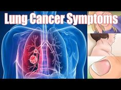Lung Cancer Symptoms | How to Recognise Most Common Lung Cancer Symptoms - WATCH VIDEO HERE -> http://bestcancer.solutions/lung-cancer-symptoms-how-to-recognise-most-common-lung-cancer-symptoms    *** symptoms of lung cancer ***   Lung cancer symptoms | In this video you will see 3 easy methods to recognise lung cancer symptoms early. So see this video first to last to get full information to realize sign of lung cancer symptoms…..   SUBSCRIBE to my channel for more vi