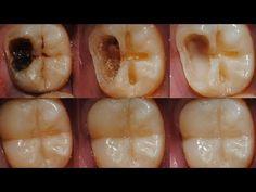 Wie du den Zahnverfall durch einfache Mittel stoppen kannst! - YouTube