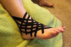 Ayak Burkulmasına Çok Etkili Birkaç Çözüm  Ayak bileği burkulması, ayağın olması gereken hareketinin dışında bir hareketle, bu genellikle ayağın içe doğru dönmesi ya da dışa doğru dönmesi sonucu oluşan bir mekanizma ile meydana gelir.    Normalde ayak bileği sadece aşağı yukarı hareket etmekle görevliyken, bazen kontrolsüz hareketler sonucu ayak bileğinin iç ve dış kısmındaki bağların yırtılması ile meydana gelen ayak bileği burkulmaları olarak tanımlanır.