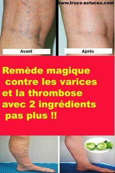 Les varices sont le plus souvent trouvées dans les jambes et les chevilles. EIles viennent à cause des veines endommagées, en raison de l'excès de poids, le manque d'exercice, des blessures, des caillots de sang, la grossesse