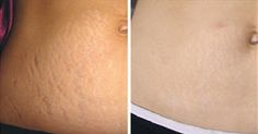 Stretch marks are actually pale scars that appear on the skin surface as a result to rapid weight loss or weight gain. These marks also appear during pregnancy or certain hormonal changes. Often considered as a Weight Loss Meal Plan, Weight Loss Program, Best Weight Loss, Weight Loss Tips, Reduce Weight, How To Lose Weight Fast, Weight Gain, Hormonal Changes, Holistic Healing