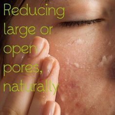Reducing Large or Open Pores, Naturally Although not medically harmful in any way, larger pores can be a real nuisance and affect an otherwise clear complexion. Some people will have these larger pores purely due to genetic inheritance, but large pores are also a common problem for those with a history of acne problems.