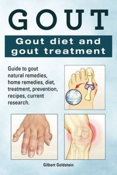 Gout. Gout diet and gout treatment. Guide to gout natural remedies, home remedies, diet, treatment, prevention, recipes, current research.