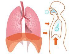 Klaplong, ook wel bekend als pneumothorax, is een toestand waarbij één van de longen inklapt. Het kan verschillende oorzaken hebben.