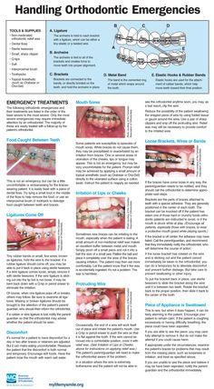 for handling orthodontic emergencies (schedu., Tips for handling orthodontic emergencies (schedu. Braces Food, Braces Tips, Dental Braces, Teeth Braces, Happy Dental, Smile Dental, Dental Care, Dental Hygiene, Orthodontics Marketing