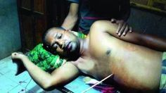 Ajay Mahant lies with the arrow pierced in his stomach on Friday (Photo: DC)  With the arrow piercing his stomach Ajay Mahant a resident of Nishaposi under Thakurmunda police station here did not care for the excruciating pain to overpower him and rode to hospital before it was late.  According to reports Ajay had a dispute with one Indramani of same village over some monetary transactions. He had been demanding the amount since long and had an altercation with Indramani on Friday.  In a fit…