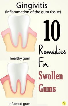 10 Simple Home Remedies For Swollen Gums : Here are 10 of the most effective home remedies to treat and gain relief from swollen gums