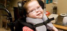 Forms and Stages of Cerebral Palsy #CP