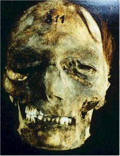Mummified head .