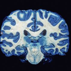 Brain, Coronal Section, Grey Matter Stained Blue Photographic Print by Ralph Hutchings at Art.com