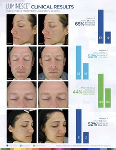 The results speak for themselves. For more information about Jeunesse products and the Luminesce product line visit:  http://lookathereyes.com/warm/?u=2664