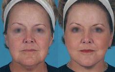Chirurgie mini-lifting du cou pratiquée par un chirurgien esthétique ...