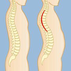 kyphosis posture img