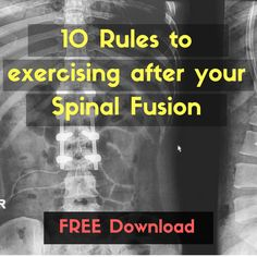 The Do's And Don'ts Of Exercising After A Spinal Fusion. - Fitness 4 Back Pain Scoliosis Surgery, Neck Surgery, Scoliosis Exercises, Spine Surgery, Stretches, Core Exercises, Fitness Exercises, Acdf Surgery, Spinal Fusion Surgery