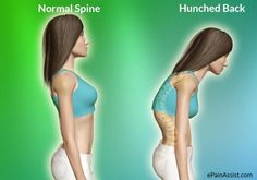 6 Exercises To Fix Your Hunched Back | CalorieBee