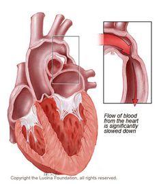 coarctation of the aorta obstructive defect