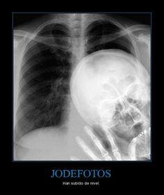 Jodefotos Nivel Extremo / Photospoiler extreme level