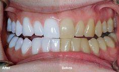 DENTS - Le mélange de ces 2 ingrédients vous aidera à retrouver la blancheur naturelle de vos dents. Découvrez-les !