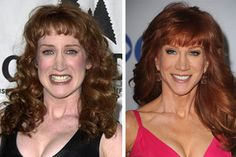 Kathy Griffin Plastic Surgery Before After Always interesting what you can find when you type in elective surgery and other related terms Increase Bust Size, Elective Surgery, Plastic Surgery Before After, Plastic Surgery Photos, Kathy Griffin, Celebrities Before And After, Under The Knife, Celebrity Plastic Surgery, Female Hormones