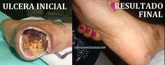 Ulcera del tobillo o el pie.