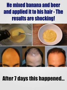 He mixed banana and beer and applied it to his hair – The results are shocking! After 7 days this happened New Hair Growth, Hair Growth Tips, Stop Hair Loss, Prevent Hair Loss, Diy Skin Care, Skin Care Tips, Regrow Hair Naturally, Thin Hair Styles For Women, Hair Loss Shampoo