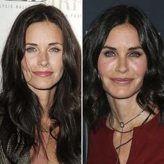 See Before and After Pics of Celebrities Who Are Rumored to Have Had Plastic Surgery #4UMedClinic Your #TotalCareMedSpa