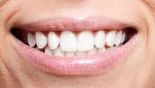 Zaburzenia zwarcia doprowadzają nie tylko do starcia powierzchni zębów, pękania szkliwa, powstania ubytków szkliwa przy szyjkach, ale również do zniszczenia prac protetycznych (pękanie porcelany, mostów, licówek). Nieprawidłowe warunki zgryzowe mają wpływ na stan dziąsła i kości w obrębie przeciążonych zębów. #dentistry