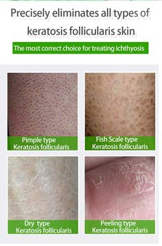 457 Best Derm related images in 2019   Family nurse