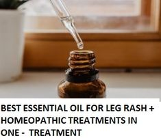 Just 3 Drops of This Clear Oil Gently Massaged Onto YOUR LEG RASH Will Stop The Reaction- And Get Rid of Your Leg Rash in 3 Days - Without Harming Your Skin at All! This is a unique mixture of essential oils and homeopathic treatments, that is why this best essential oil for Leg Rash really works.  In the final trials,  93% of people reported that there leg rash problem had GONE IN THREE DAYS The skin was looking the BEST it had ever looked for a long time All within 3 DAYS Laryngitis Remedies, Rashes Remedies, Homeopathic Remedies, Essential Oils For Ringworm, Best Essential Oils, Homeopathic Medicine, Herbal Medicine, Leg Rash