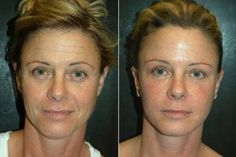 Senza botox, 15 anni in meno garantiti 70 Year Old Women, Skin Spots, Skin Elasticity, Facial Care, Tips Belleza, Anti Aging Cream, Fitness Workouts, Skin Treatments, Plastic Surgery