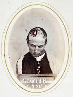 Brazer Wilsey, Sergeant, Company D, 4th NY Vols., Aged 30.  Accidental Gunshot Wound Of Scalp Over Frontal Bone, Denuding Bone Of Periosteum.  Hand-drawn bullet path by R. B. Bontecou.