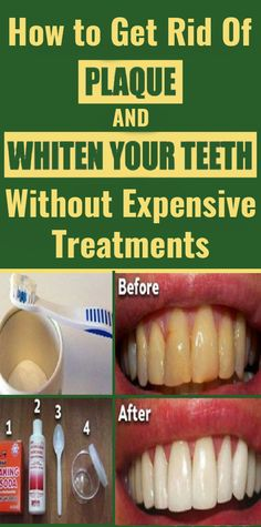 Get Rid Of Dental Plaque and Whiten Your Teeth With These Cheap Methods – Beauty Log Herbal Remedies, Health Remedies, Natural Remedies, Oral Health, Health Care, Teeth Health, Oral Hygiene, How To Get Rid, Nature