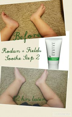 My son got some bug bites on the 4th of july. Rodan and fields Soothe step 2 to the rescue! This miracle lotion helped his bug bites go down in a matter of hours. It can also be used for eczema, poison ivy rash, diaper rash and sunburns. Safe for use on children. My son just turned one. Message me today for more details. https://nlatham.myrandf.com/Shop/Product/SOTT050