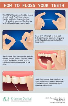 There's more to it than just poking floss between your teeth! Did you know the right way to floss? #DentistTucson   #Flossing