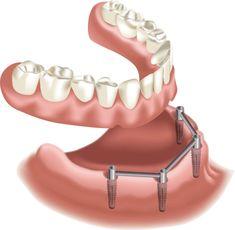 Missing Teeth, Dental Implants, For Your Health, Info, Oral Health, Dental, Photo Illustration