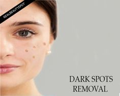 Home remedies for Dark Spots on your Skin