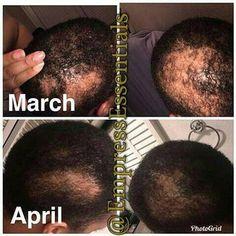 New Hair Growth, Hair Growth Tips, Healthy Hair Growth, Natural Hair Growth, Black Hair Growth, Hair Growth Treatment, Bald Spot Treatment, Hair Treatments, Natural Treatments