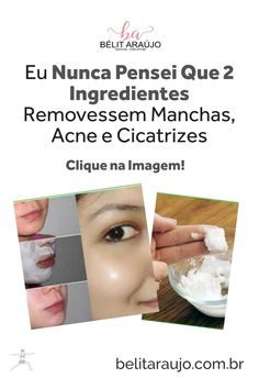 remover manchas no rosto acne Remover Manchas, Acne Products, Spots On Face, Homemade Recipe, Tips, 2 Ingredients