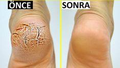 Mutlaka deneyin, kesin çözüm - Care - Skin care , beauty ideas and skin care tips Circle Tattoos, Forearm Tattoos, Finger Tattoos, Cross Tattoos, Men Tattoos, Skin Color Chart, Natural Skin Tightening, Skin Care Remedies, Diy Skin Care
