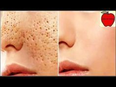 3 days and all open pores will disappear from your skin forever - Pele Limpa Get Rid Of Pores, How To Get Rid Of Acne, Oily Face, Face Skin, Oily Skin, Beauty Care, Beauty Hacks, Shrink Pores, Skin Toner