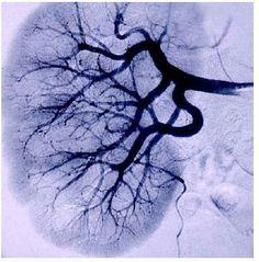 Kidney Vessels