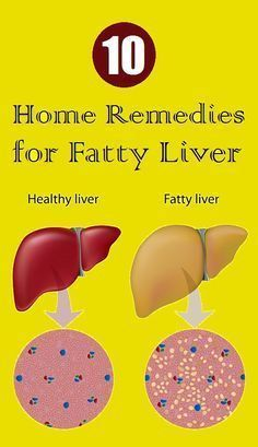Top 10 Home Remedies for Fatty Liver - Health Remedies Fatty Liver Diet, Healthy Liver, Healthy Detox, Fatty Liver Symptoms, Detox Your Liver, Liver Cleanse, Cleanse Detox, Health Cleanse, Body Cleanse