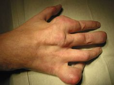 Dna, Health Fitness, Fitness, Health And Fitness, Gout