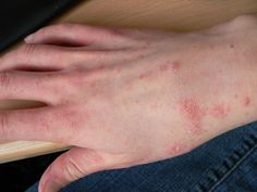 Scabies is the skin infection caused by mites, known as Sarcoptes scabiei. It causes skin irritation that leads to small red bumps and blisters. Scabies is Home Remedies For Scabies, Natural Home Remedies, Herbal Remedies, Skin To Skin, Skin Tag, Common Skin Rashes, La Gale, Natural Antihistamine, Bites And Stings
