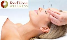 With each Facial Acupuncture Rejuvenation Treatment ($125.00) you purchase at Red Tree Wellness, 30% will be donated to the Sanga Primary School Water Project.   Facial Acupuncture is a great alternative to treatments like botox!