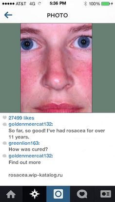 Tinted Moisturizer For Rosacea 093702 - Rosacea. You have nothing to lose! Visit Site Now.